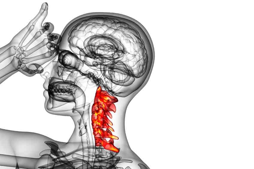 Dolor de cuello: causas más habituales y cómo solucionarlo