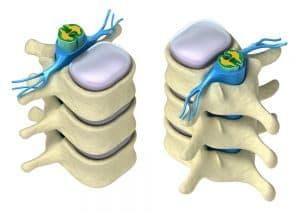 vértebras columna lumbar