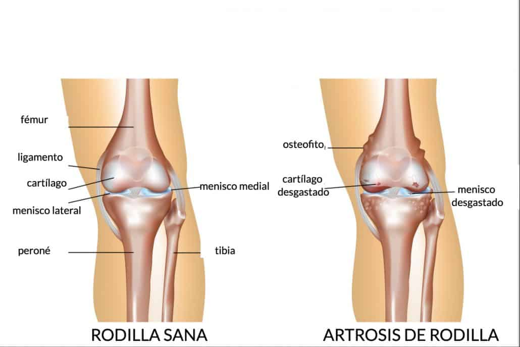 Artrosis de rodilla: ¿qué pasa si la articulación se desgasta y duele?