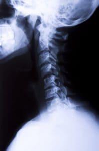 radiografía cuello