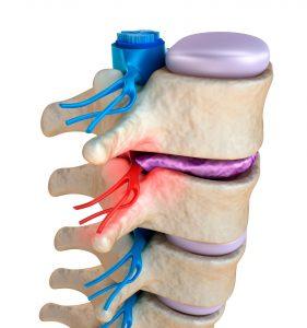 presión del disco sobre la raíz nerviosa
