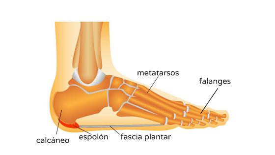 Fascitis plantar: ¿sientes dolor al apoyar el pie en el suelo?