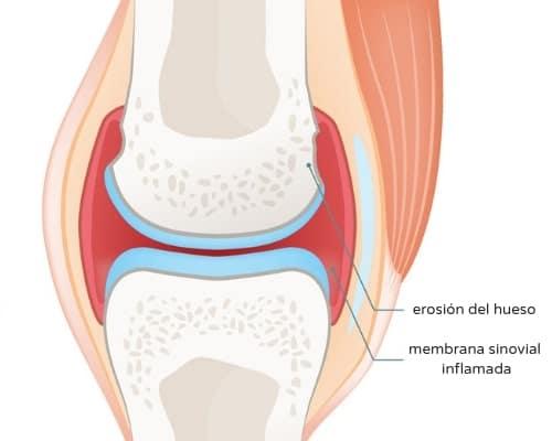 Bursitis: dolor e inflamación de la bolsa sinovial que rodea la ...